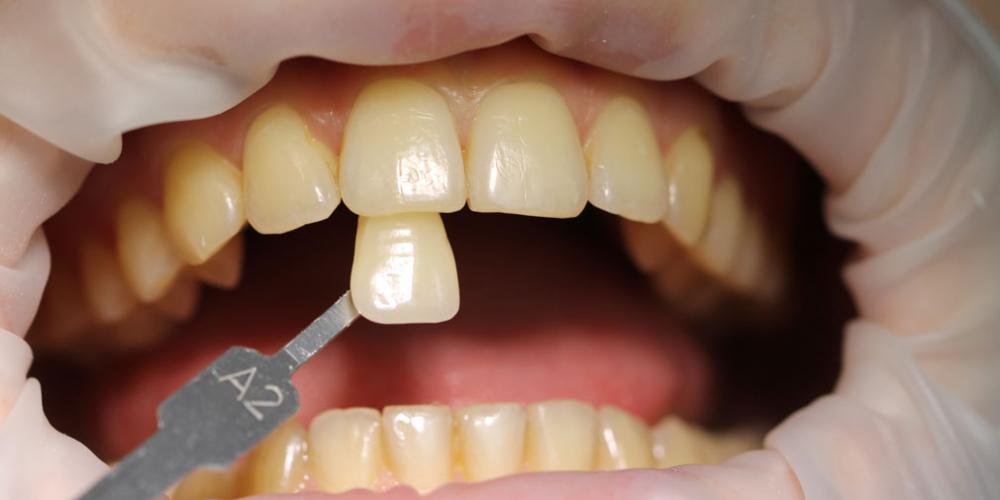 Результат отбеливания зубов ZOOM - фото №1