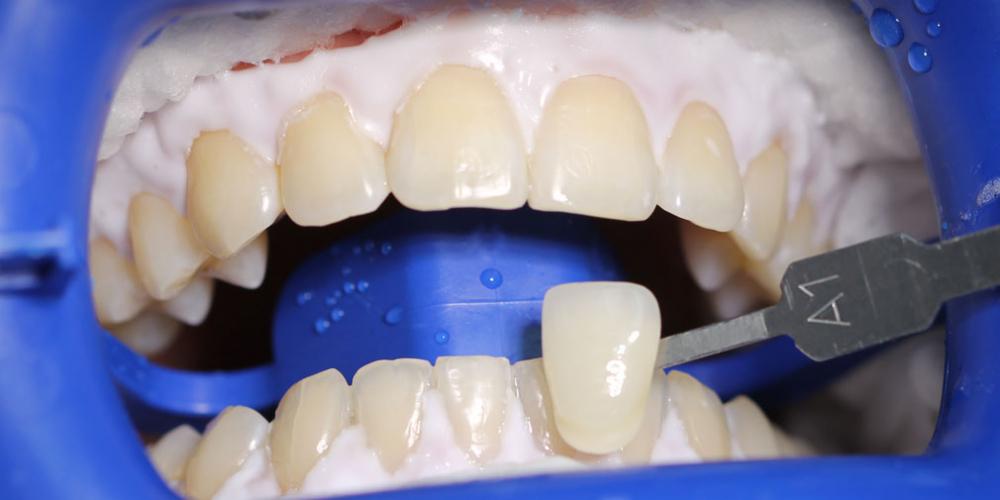 Результат отбеливания зубов ZOOM - фото №2