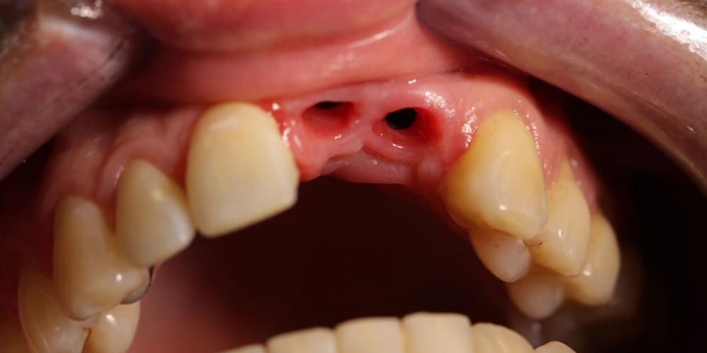 Результат имплантации и протезирования двух передних зубов - фото №1