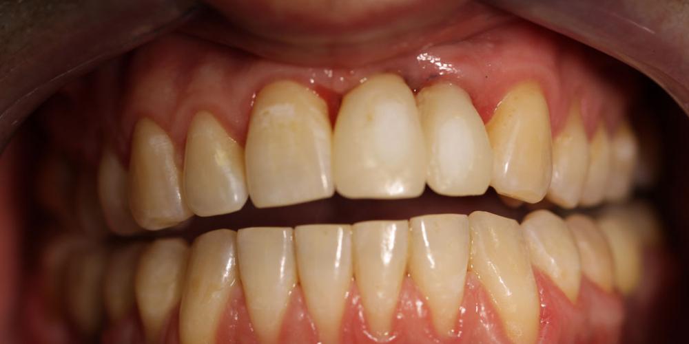 Результат имплантации и протезирования двух передних зубов - фото №3