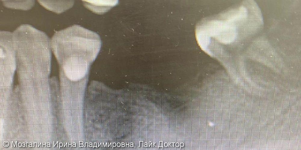 Проведена операция направленной костной регенерации для проведения имплантации - фото №1