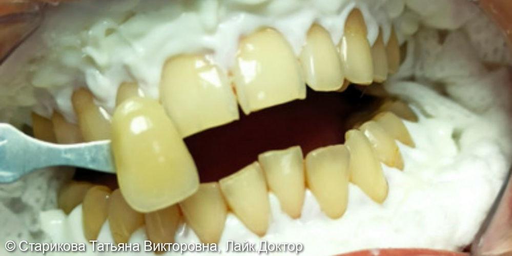 Проведено отбеливание зубов Amazing White - фото №1