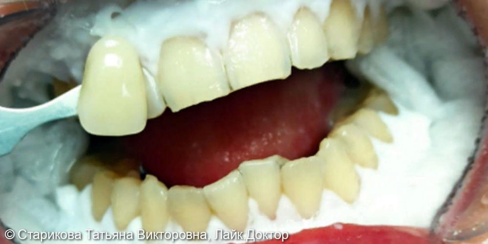 Проведено отбеливание зубов Amazing White - фото №2