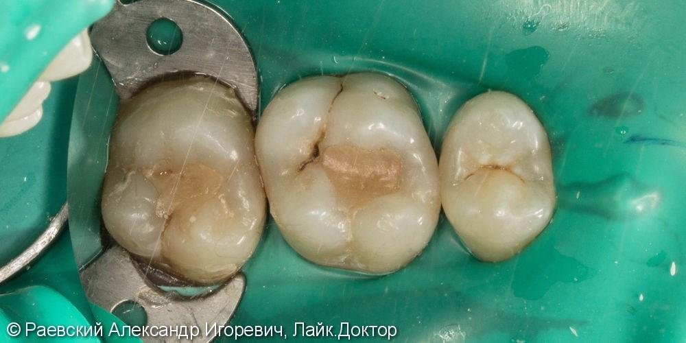 Лечение кариеса верхнего моляра - фото №1