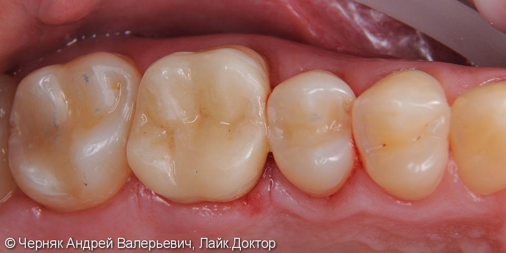 Цельнокерамическая накладка e.max на зуб 1.6 - фото №2
