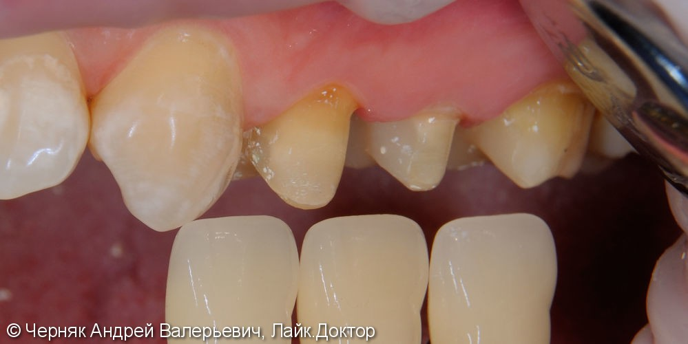 Цельнокерамические коронки e.max на зубы 2.4, 2.5, 2.6, 3.5; металлокерамическая коронка на имплантате в области 3.6 - фото №1