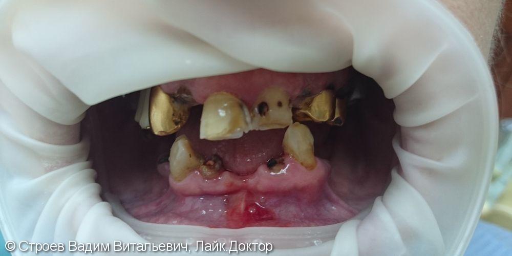 Полное восстановление зубного ряда - фото №1