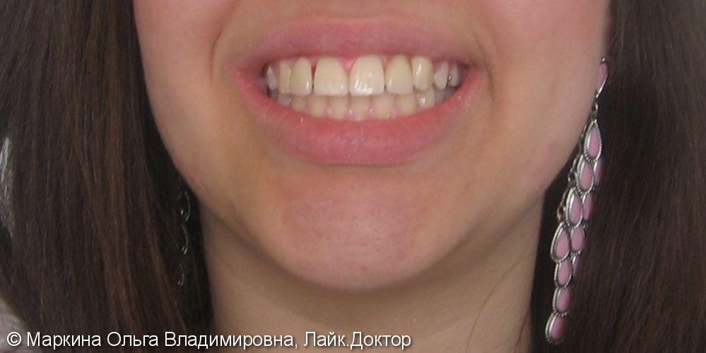 Пациентка с первичной адентией верхних боковых резцов и ретенцией верхнего бокового клыка - фото №2