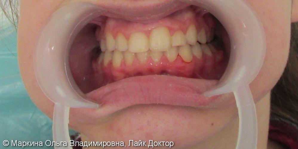Клинический случай выравнивания зубного ряда на брекетах Биоквик фирмы Forestadent - фото №2