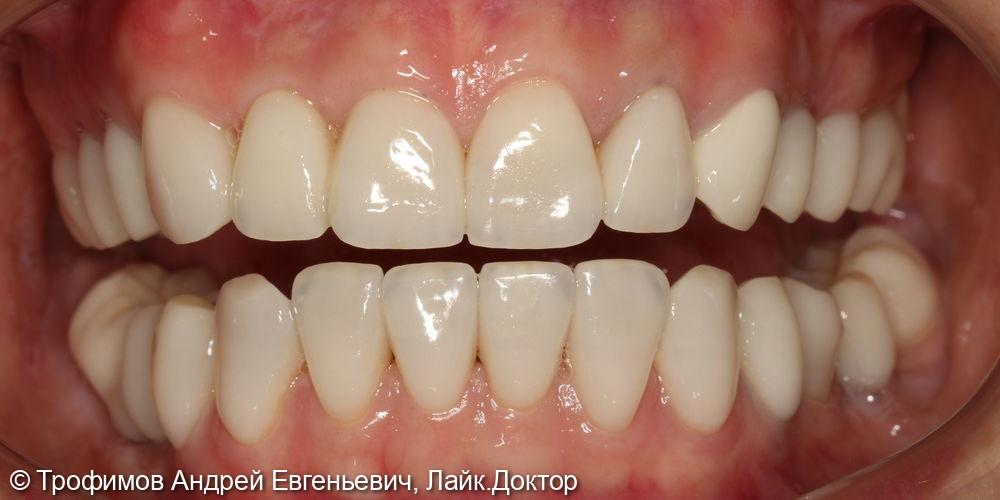 Полная реконструкция улыбки - фото №2