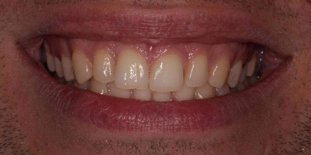 Результат отбеливание зубов Zoom 4 - фото №1