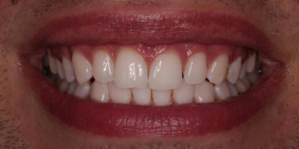 Результат отбеливание зубов Zoom 4 - фото №3