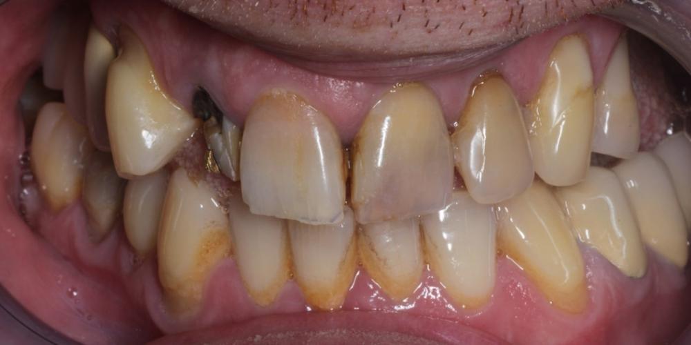 Лечение и протезирование зубов вкладками и металлокерамическими коронками - фото №1