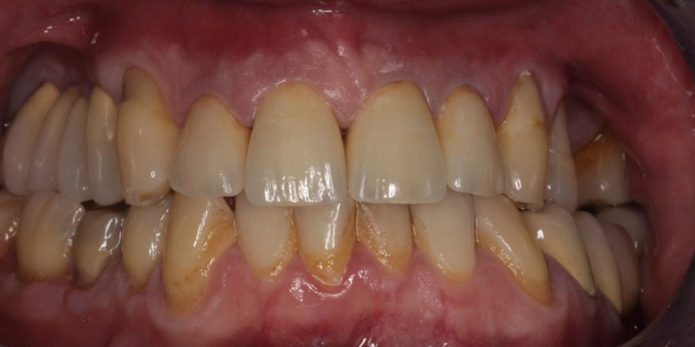 Лечение и протезирование зубов вкладками и металлокерамическими коронками - фото №2