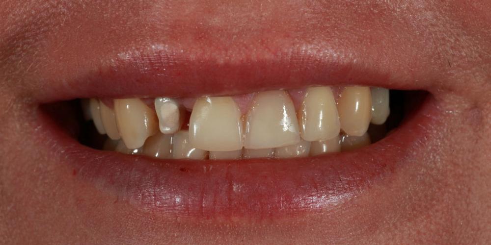 Протезирование зубов керамическими винирами и керамической коронкой на имплантате - фото №1
