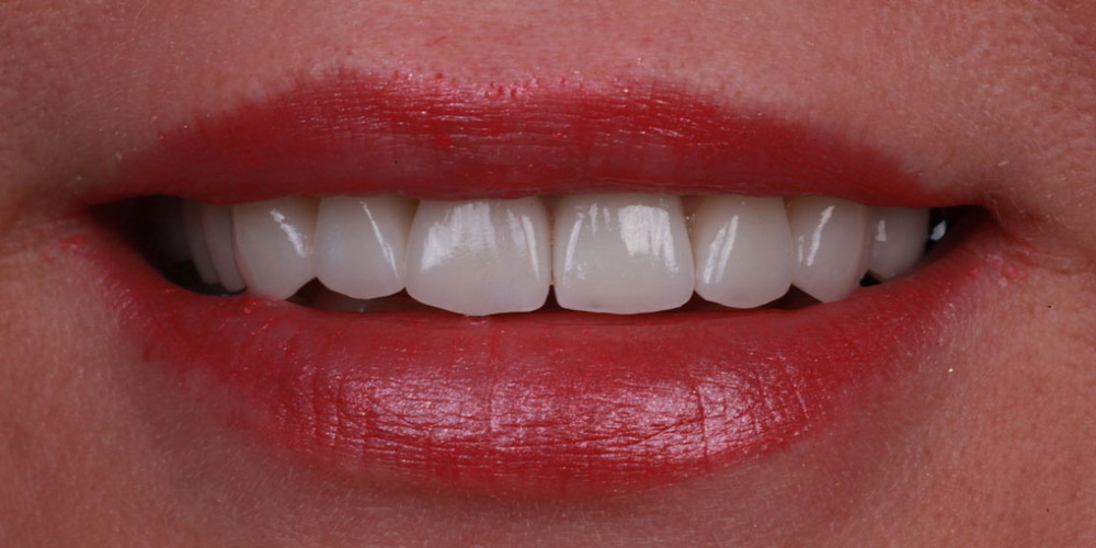 Протезирование зубов керамическими винирами и керамической коронкой на имплантате - фото №2