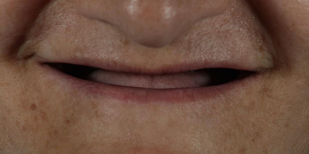 Устанение полной адентии двух челюстей при помощи установки 4 имплантатов на каждую челюсть - фото №1