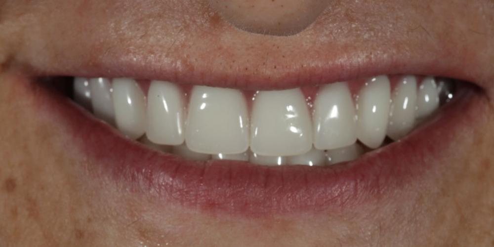 Устанение полной адентии двух челюстей при помощи установки 4 имплантатов на каждую челюсть - фото №2
