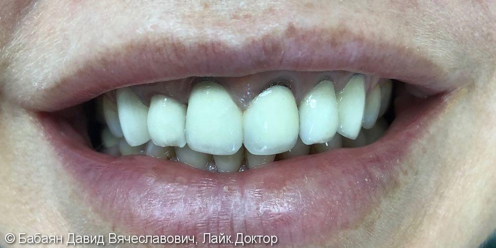Керамические винницы e.Max, а на задние зубы были установлены керамические накладки - фото №1