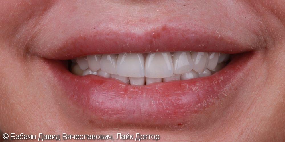 Керамические винницы e.Max, а на задние зубы были установлены керамические накладки - фото №2