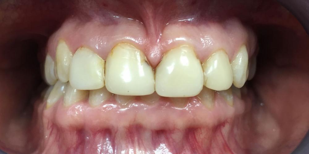 Восстановление эстетики передних зубов керамическими винирами - фото №1