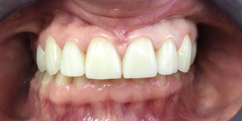 Восстановление эстетики передних зубов керамическими винирами - фото №2