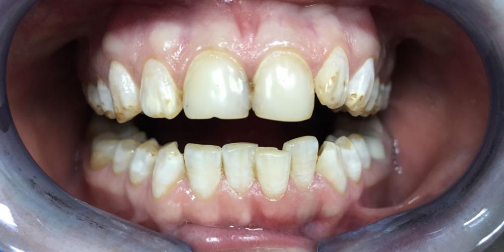 Установка виниров на зубы верхней и нижней челюсти - фото №1