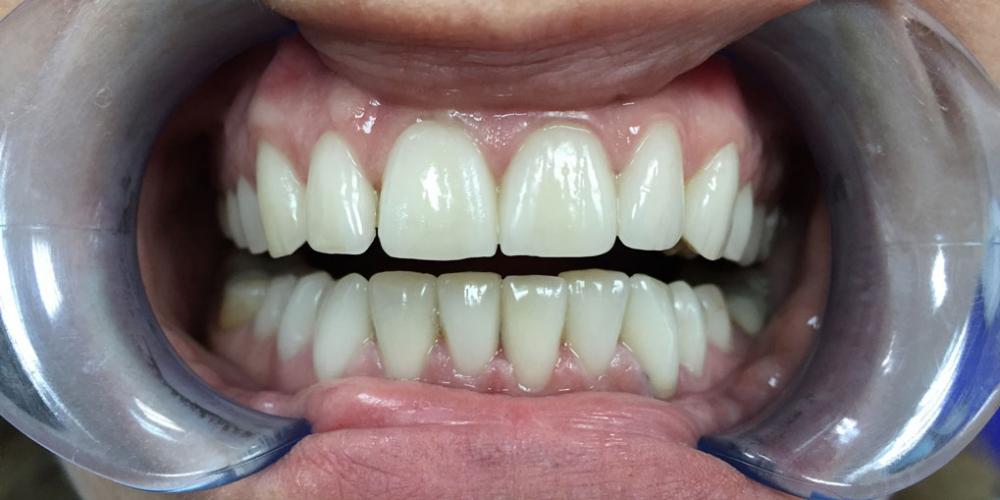 Установка виниров на зубы верхней и нижней челюсти - фото №2