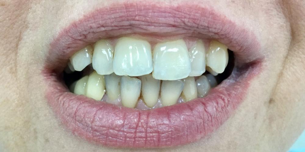 Комплексная реабилитация улыбки коронками на основе диоксида циркония и керамическими винирами - фото №1