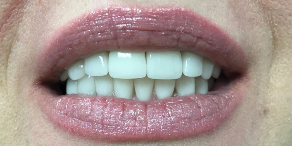 Комплексная реабилитация улыбки коронками на основе диоксида циркония и керамическими винирами - фото №2