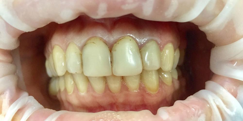Восстановление эстетики передних зубов керамическими винирами, 4 винира - фото №1