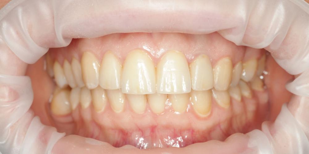 Восстановление эстетики передних зубов керамическими винирами, 4 винира - фото №2