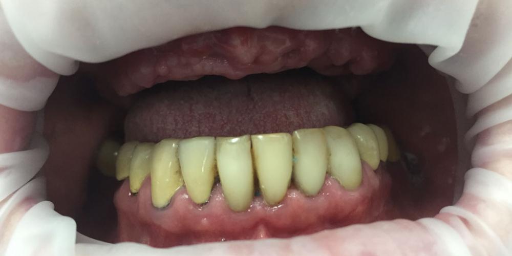 Комплексная реабилитация улыбки дентальными имплантами на верхней челюсти - фото №1