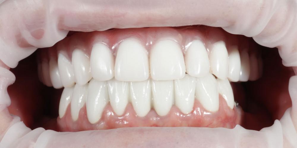 Комплексная реабилитация улыбки дентальными имплантами на верхней челюсти - фото №2