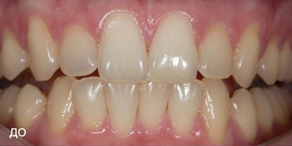 Фотографии отбеливания зубов по технологии ZOOM-4 - фото №1