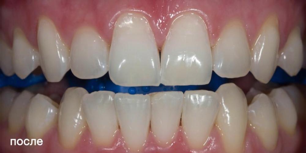 Фотографии отбеливания зубов по технологии ZOOM-4 - фото №3