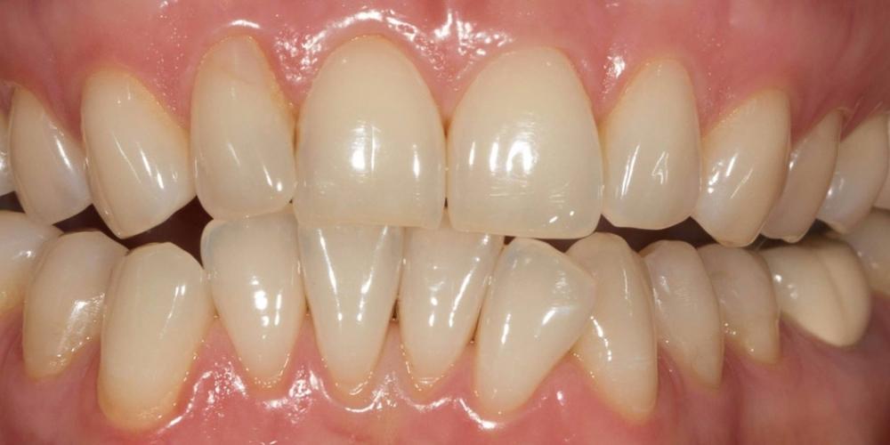 Отбеливания зубов по безопасной технологии SmartLight 3LT - фото №1