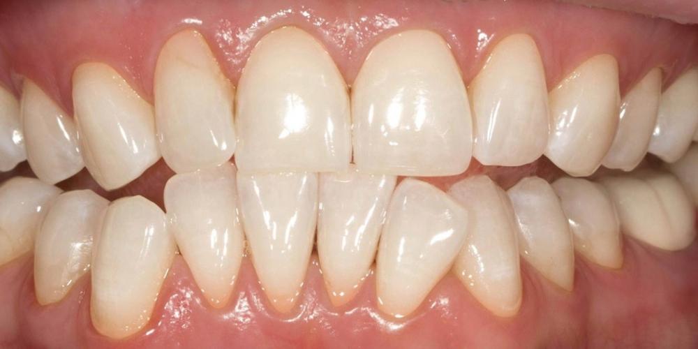 Отбеливания зубов по безопасной технологии SmartLight 3LT - фото №2