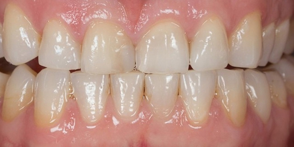 Отбеливания зубов холодным светом SmartBleach - фото №1