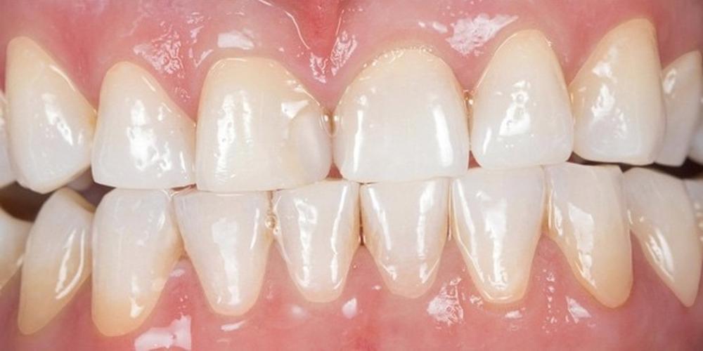 Отбеливания зубов холодным светом SmartBleach - фото №2