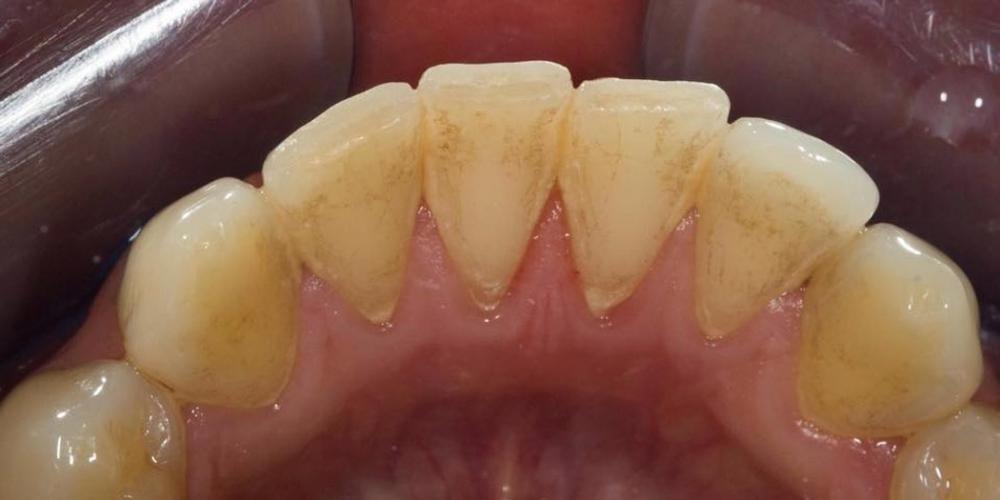 Профессиональная гигиена зубов под микроскопом - фото №1