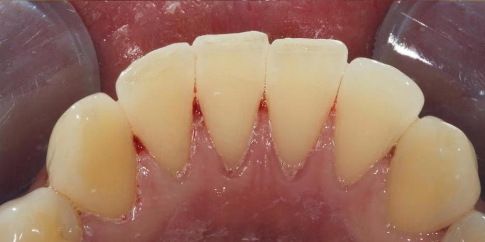 Профессиональная гигиена зубов под микроскопом - фото №2