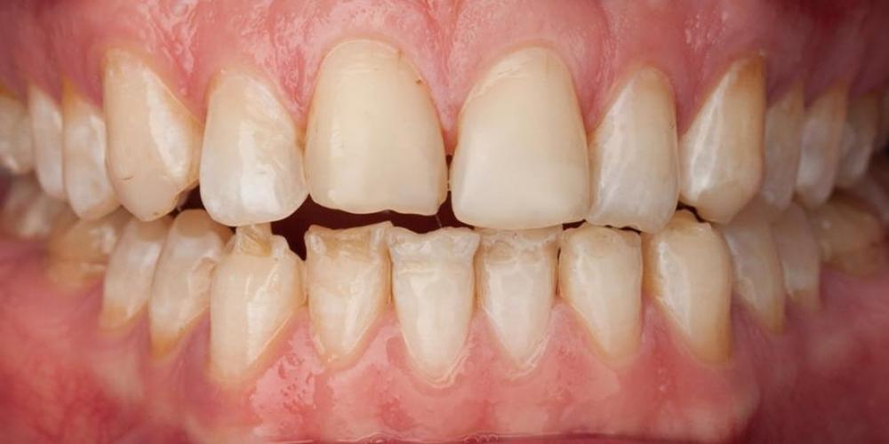 Супертонкие керамические виниры на передние зубы - фото №1