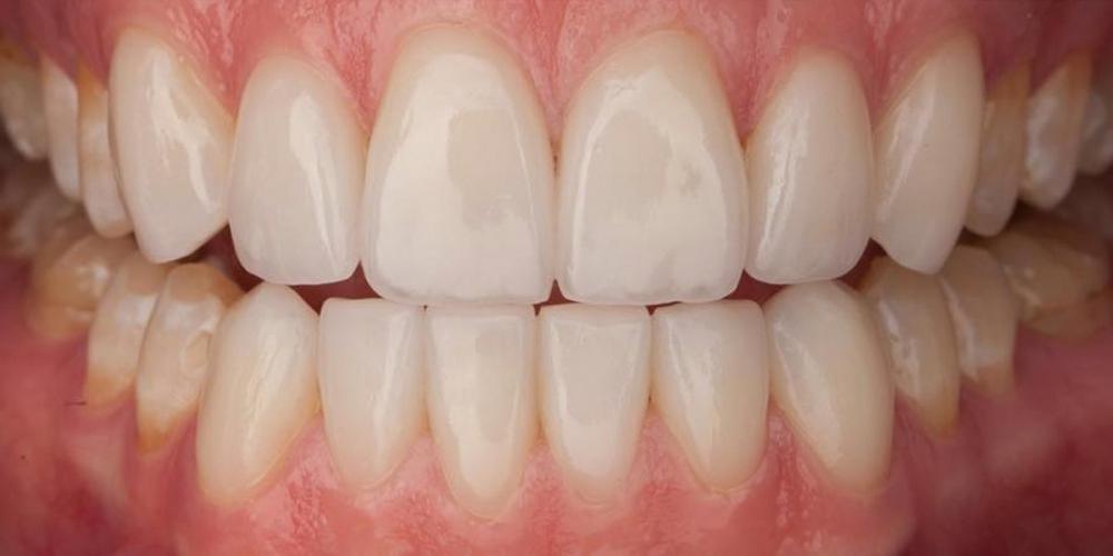 Супертонкие керамические виниры на передние зубы - фото №2