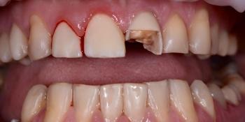 Срочный ремонт зуба, скол реставрации - фото №1