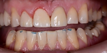 Срочный ремонт зуба, скол реставрации - фото №2