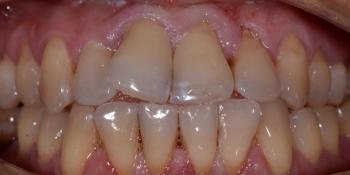 Делаем красивую улыбку, эстетическая реставрация зубов - фото №1