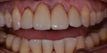 Делаем красивую улыбку, эстетическая реставрация зубов - фото №12
