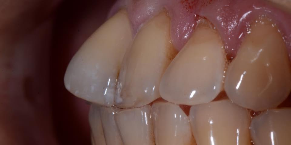 Делаем красивую улыбку, эстетическая реставрация зубов - фото №3
