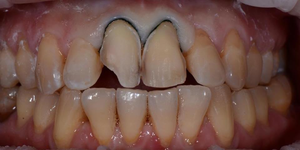 Делаем красивую улыбку, эстетическая реставрация зубов - фото №4